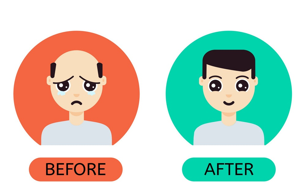Hair Transplant : Advantages, Cost, Results And Side Effects