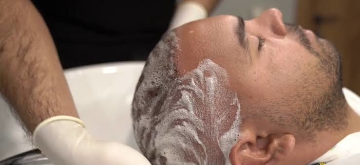 First Headwash After Hair Transplant