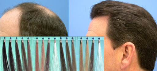 What Is Bio Fibre Hair Transplant or Synthetic Hair Transplant