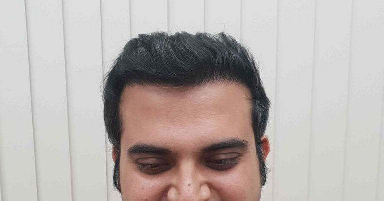 Mr Ankur from Mumbai is extremely happy with his hair transplant result.