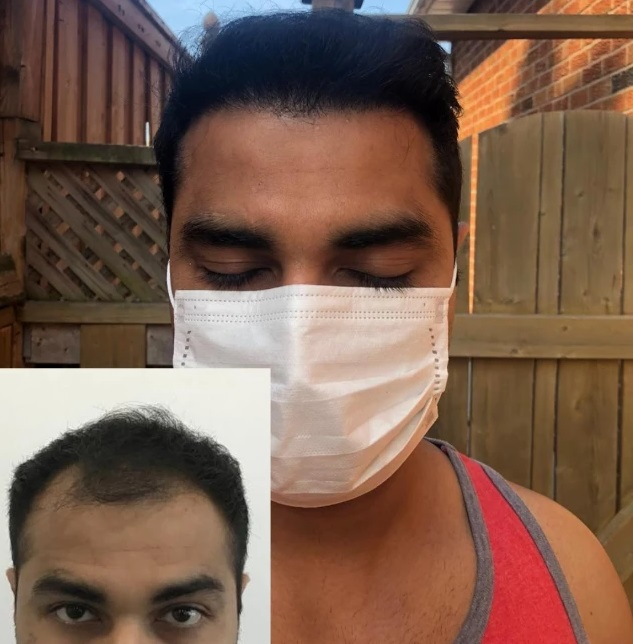 Best Hair Transplant Result by 3106 Grafts From Surat, Gujarat