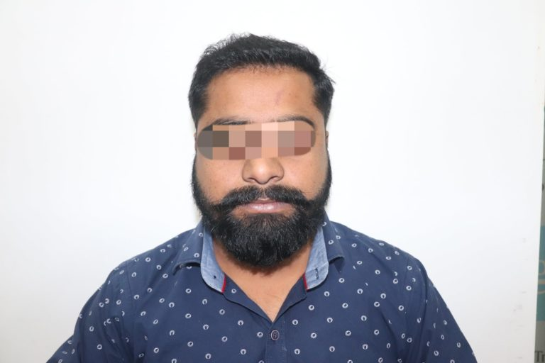 Hair Transplant Result that made Mr. Madan Young Again-Haridwar