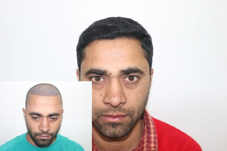Ultimate Hair Transplant Journey of Mr Wasim From Haridwar