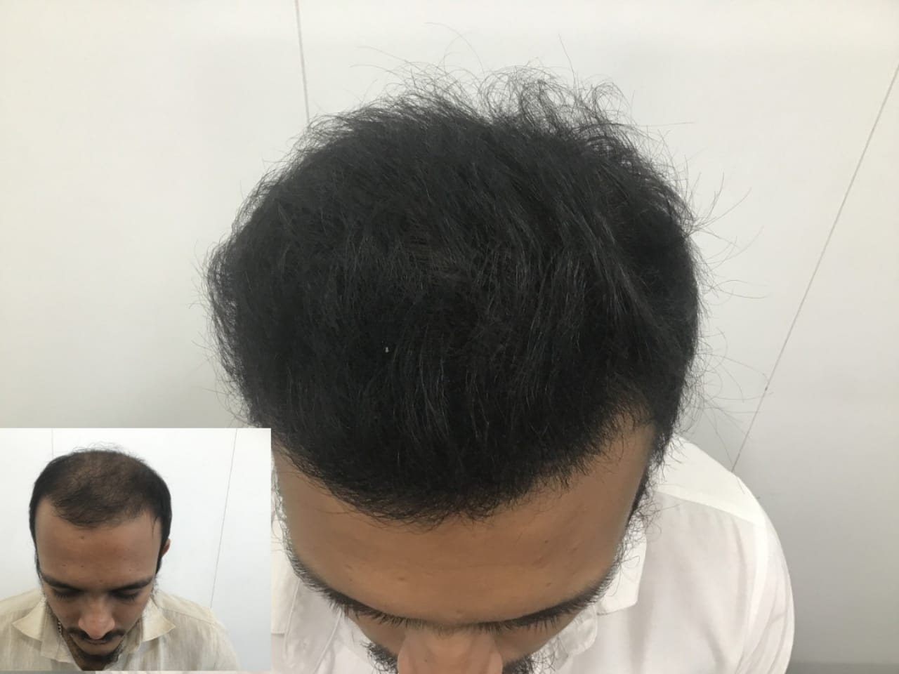 Best Hair Transplant Result Of 28 Year Old From Gujarat
