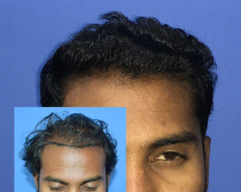 The Unbelievable Hair Transplant Result In Pune That Made Mr. Nikhil Smile.