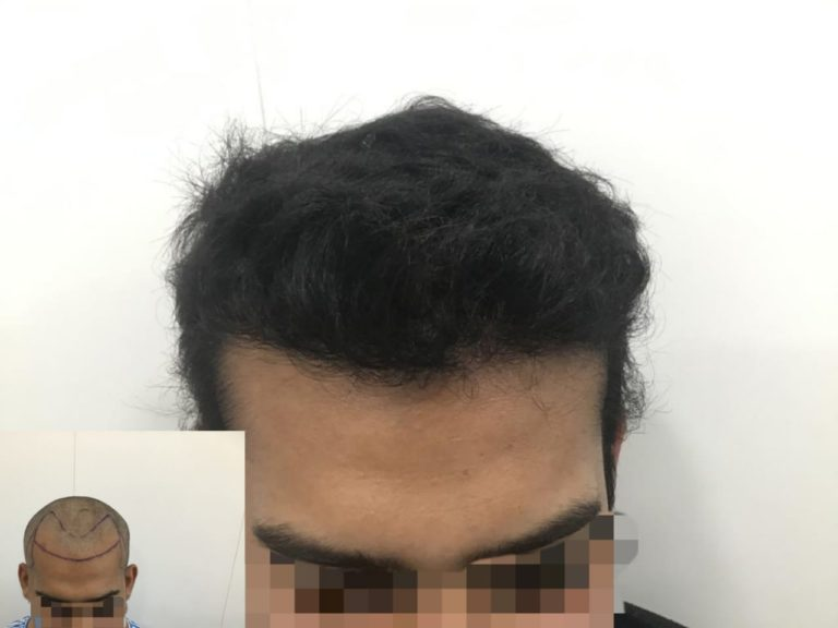 Best Hair Transplant Result by 2803 Grafts In Pune