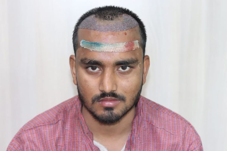 Natural Result Of Avinash From Uttarakhand