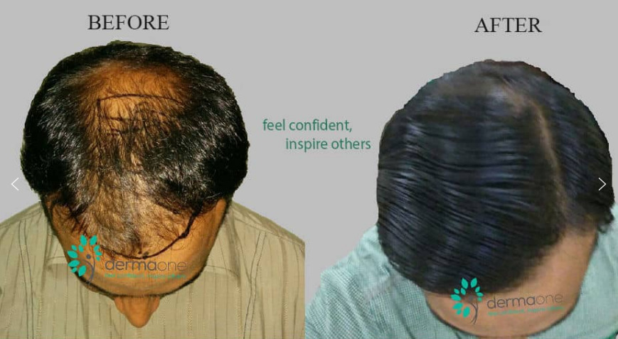 best hair transplant results in delhi