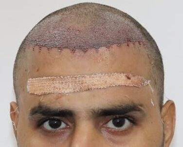 best hair transplant in haridwar