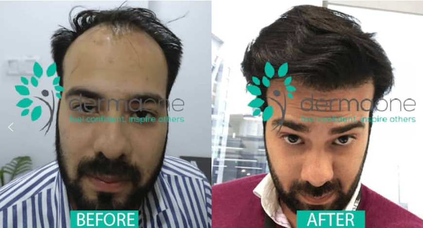 best hair transplant result in delhi