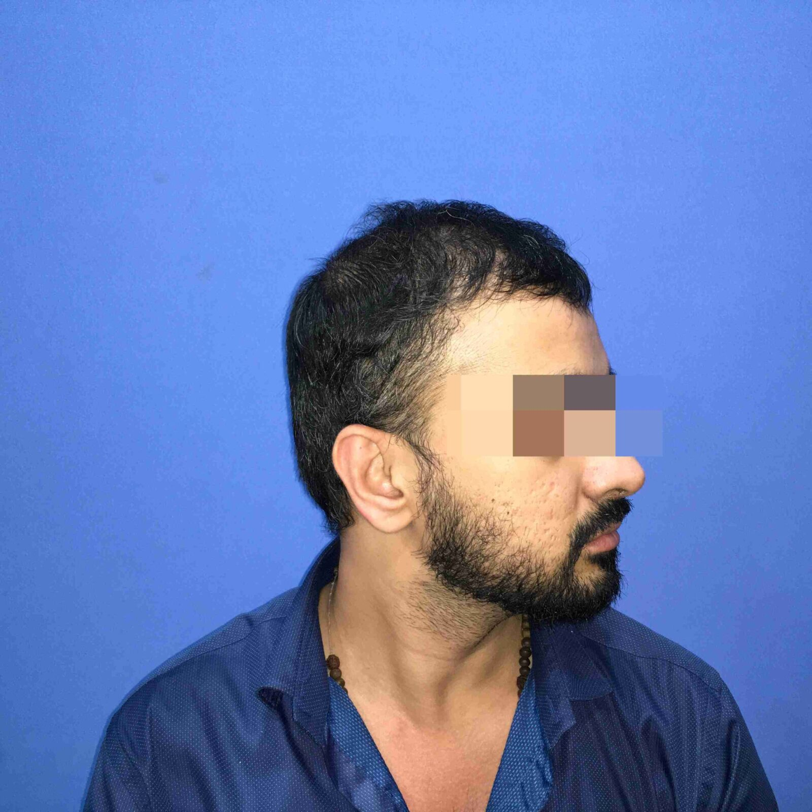 Delhi's Krishna Mishra After His Hair Transplant