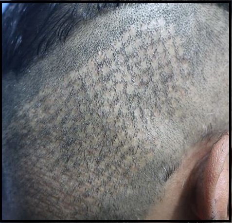 Hair Transplant Scars - Types of Scars You May Get After Hair Transplant