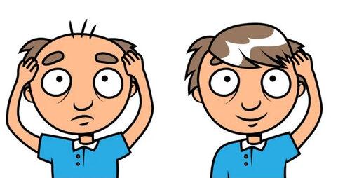 covid-triggers-hair-loss