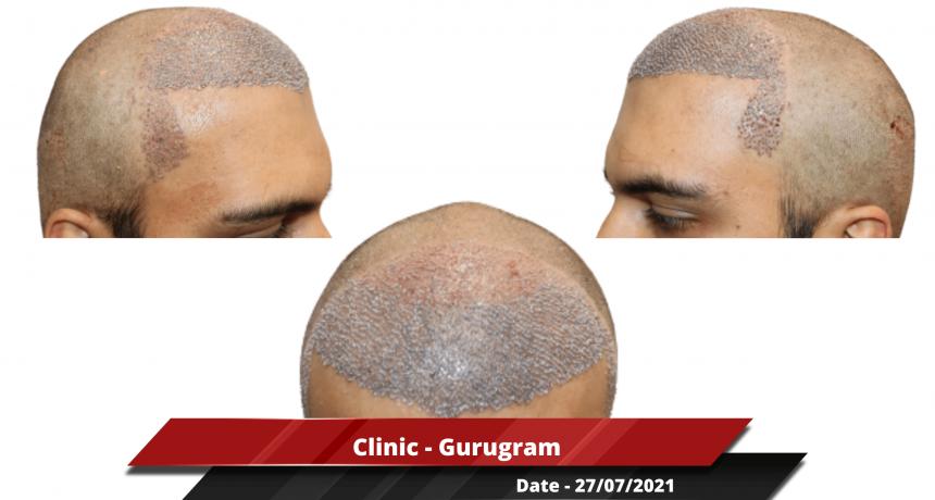 Clinic - Gurugram 2-min