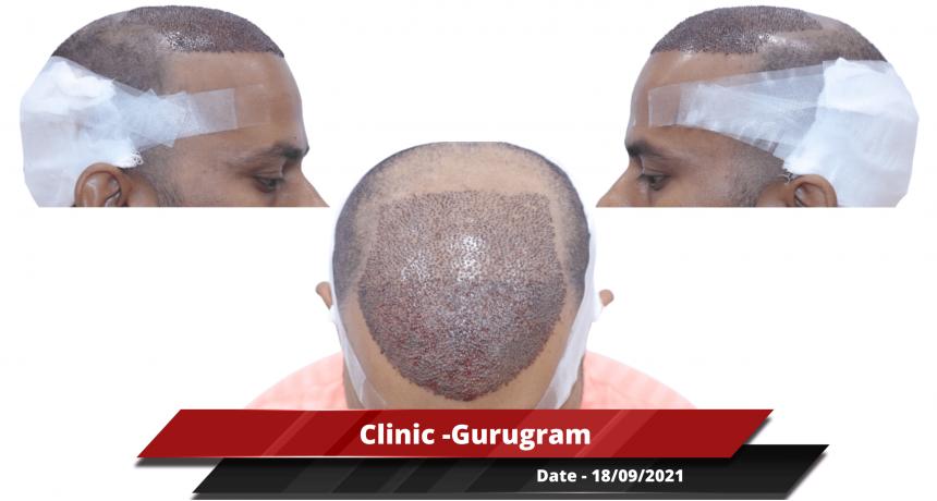 Clinic -Gurugram-min