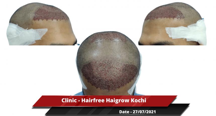 Clinic - Hairfree Haigrow Kochi 2-min