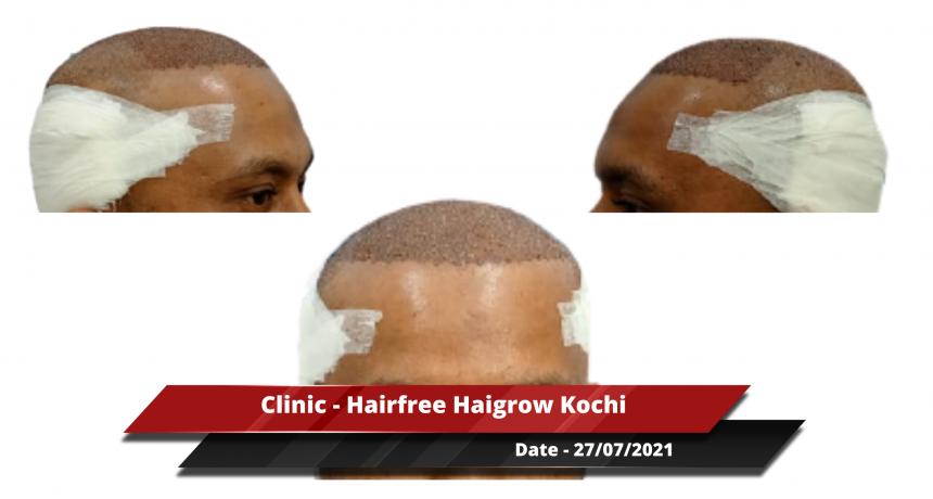 Clinic - Hairfree Haigrow Kochi