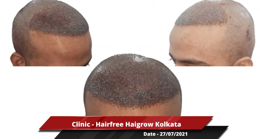 Clinic - Hairfree Haigrow Kolkata-min