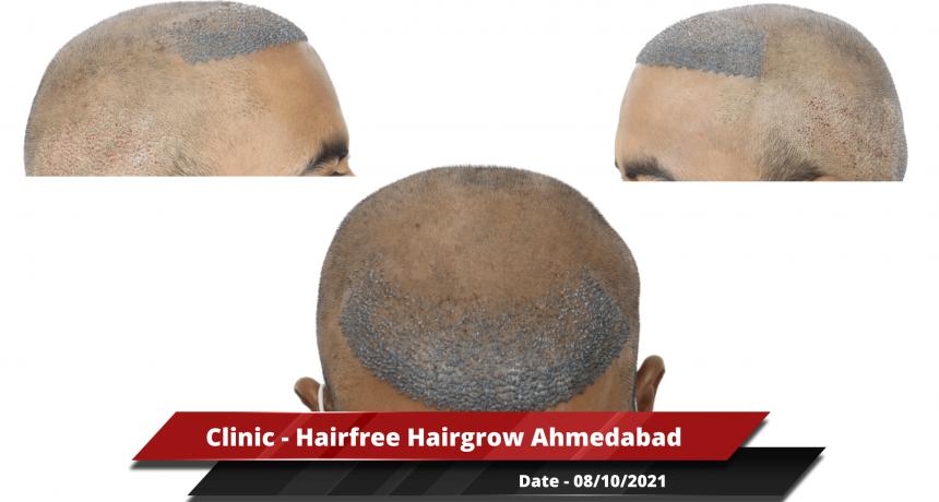 Clinic - Hairfree Hairgrow Ahmedabad 2-min