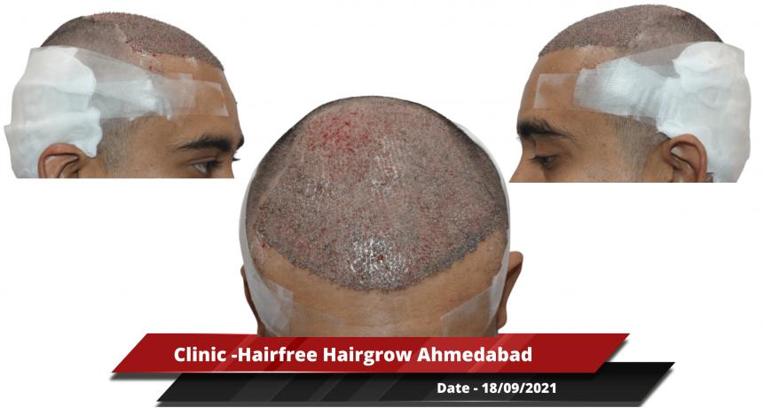 Clinic -Hairfree Hairgrow Ahmedabad 2-min