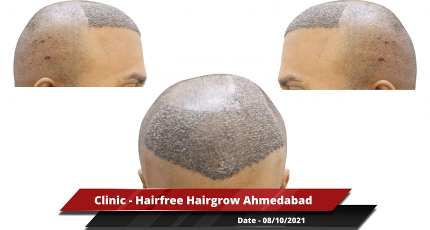 Clinic - Hairfree Hairgrow Ahmedabad-min