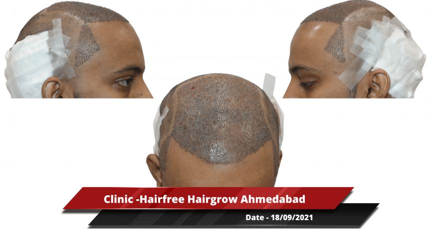 Clinic -Hairfree Hairgrow Ahmedabad-min