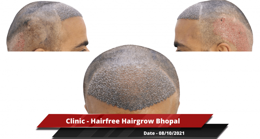 Clinic - Hairfree Hairgrow Bhopal 2-min