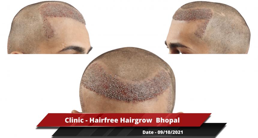 Clinic - Hairfree Hairgrow Bhopal 3-min