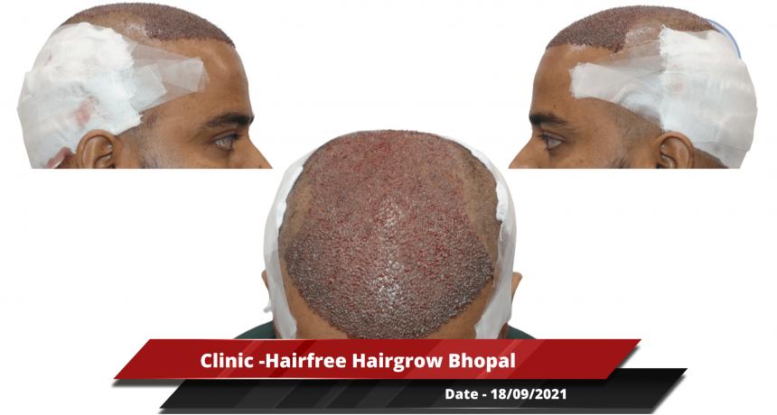 Clinic -Hairfree Hairgrow Bhopal-min