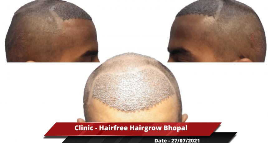 Clinic - Hairfree Hairgrow Bhopal-min