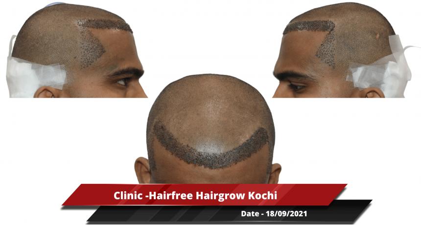 Clinic -Hairfree Hairgrow Kochi-min