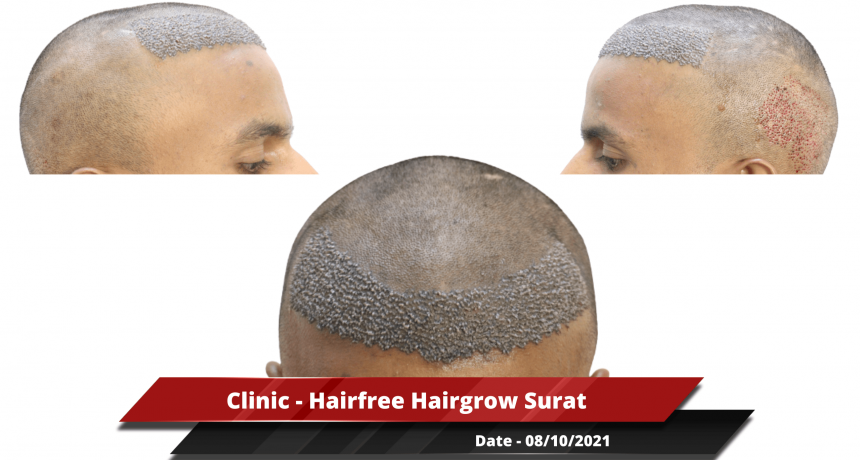 Clinic - Hairfree Hairgrow Surat-min