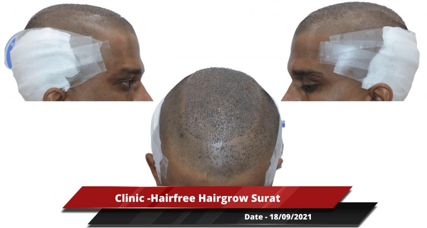 Clinic -Hairfree Hairgrow Surat-min